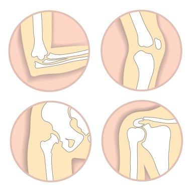 Set of human joints, elbow, knee joint, hip and shoulder joint, skeletal bone structure. Emblem anatomy and orthopedic sign for medical diagnostic center, vector illustration.