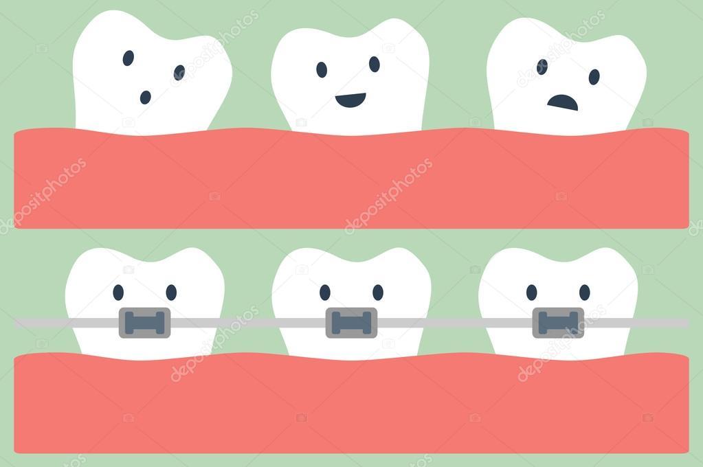 Dibujos Animados Dientes Ortodoncia