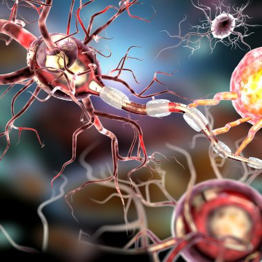 nerve cells, concept for Neurological Diseases, tumors and brain surgery
