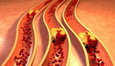 Clogged Artery with platelets and cholesterol plaque
