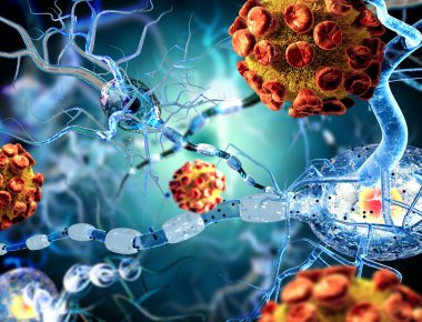 nerve cells an viruses, concept for Neurological Diseases, tumors and brain surgery.