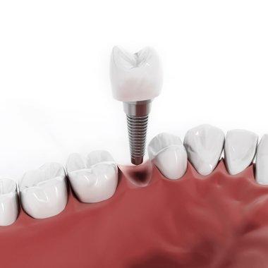 Dental implant detail
