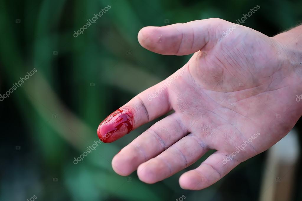 dedo cortado — Fotos de Stock © Tverdohlib.com #84750740
