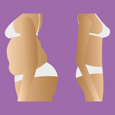 Illustration of thick and thin girls body