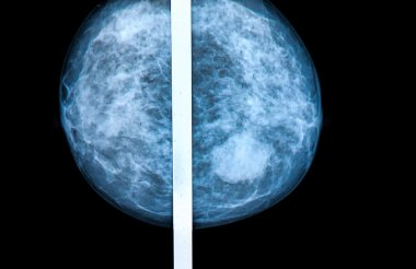 mammography breast scan X-ray