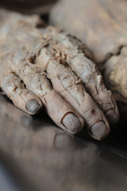 Dead person, the body, the hand, the skin is removed, fingers, nails