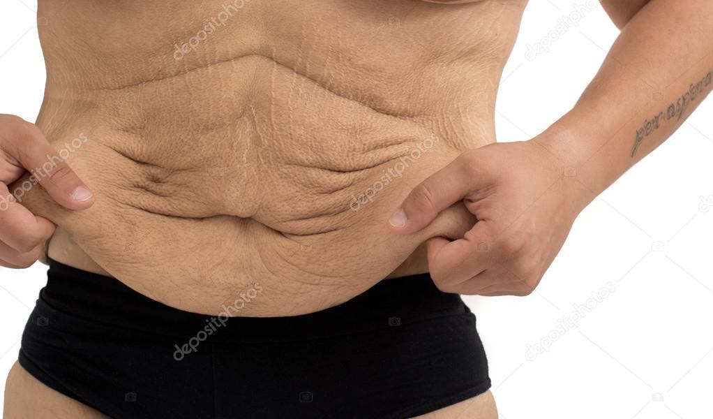 pierde greutate fast stretch marks