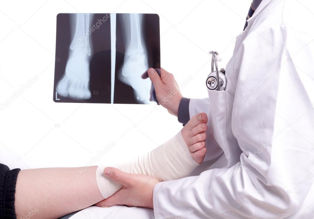 Doctor exam one X-ray picture of sprained foot
