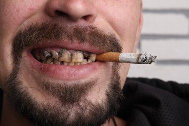 Bad teeth smoker sick