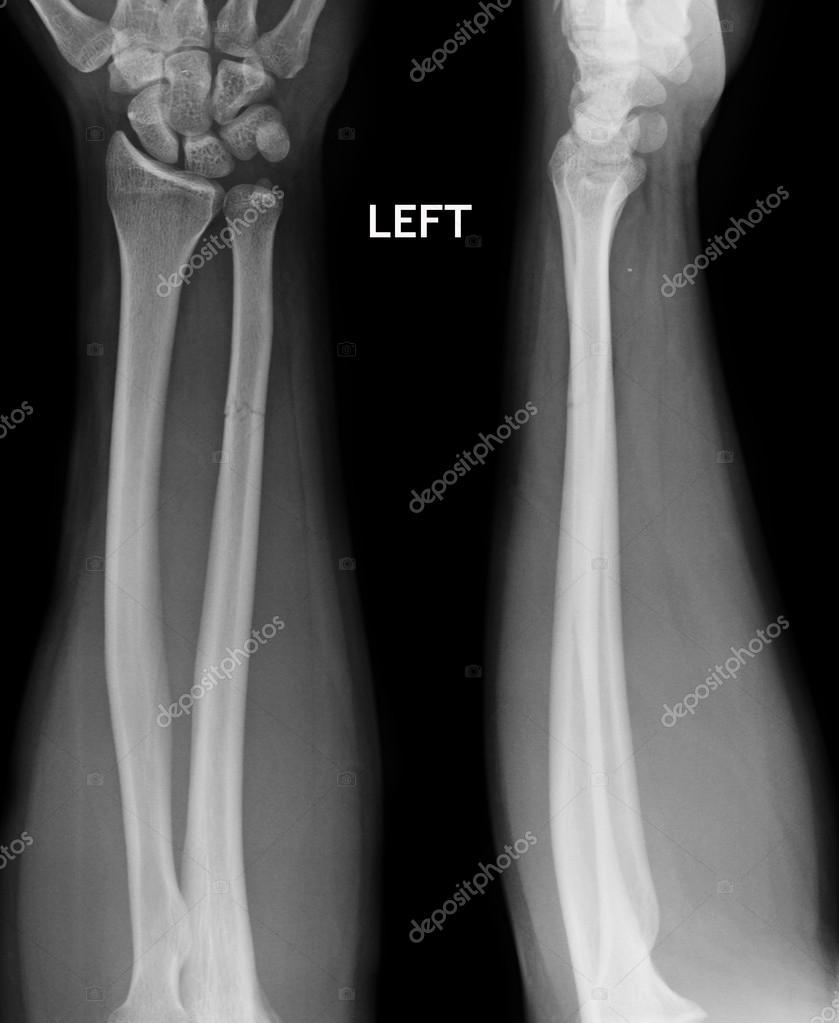 Kemik kırıkları