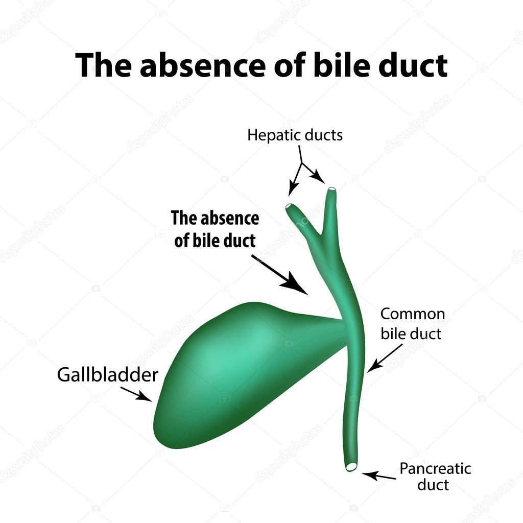La ausencia del conducto biliar. Patología de la vesícula biliar ...