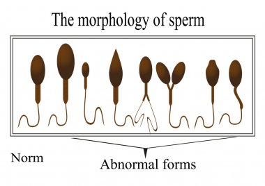 The morphology of the sperm. Normal and abnormal sperm structure