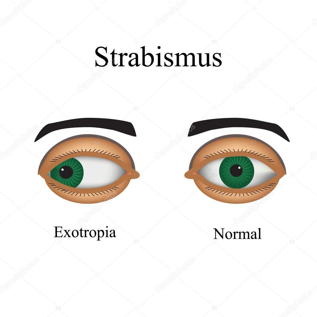 Erkrankungen des Auges - schielen. Eine Variation des Strabismus ...