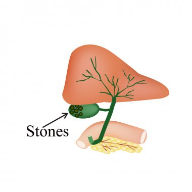 The stones in the gallbladder. Duodenum, pancreas, bile ducts. Vector illustration on isolated background