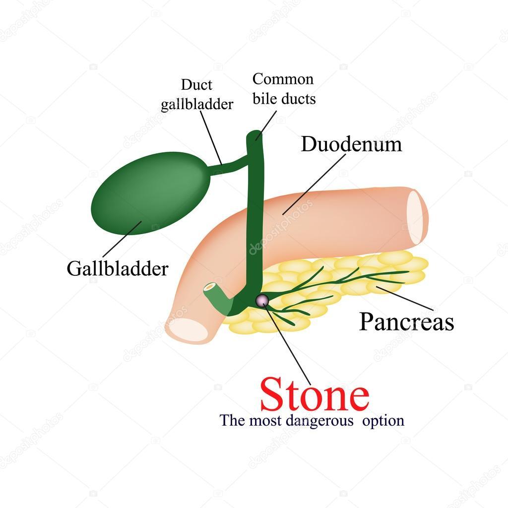 Stone Pankreas Gallengang. Die gefährlichsten Felsen. Die ...