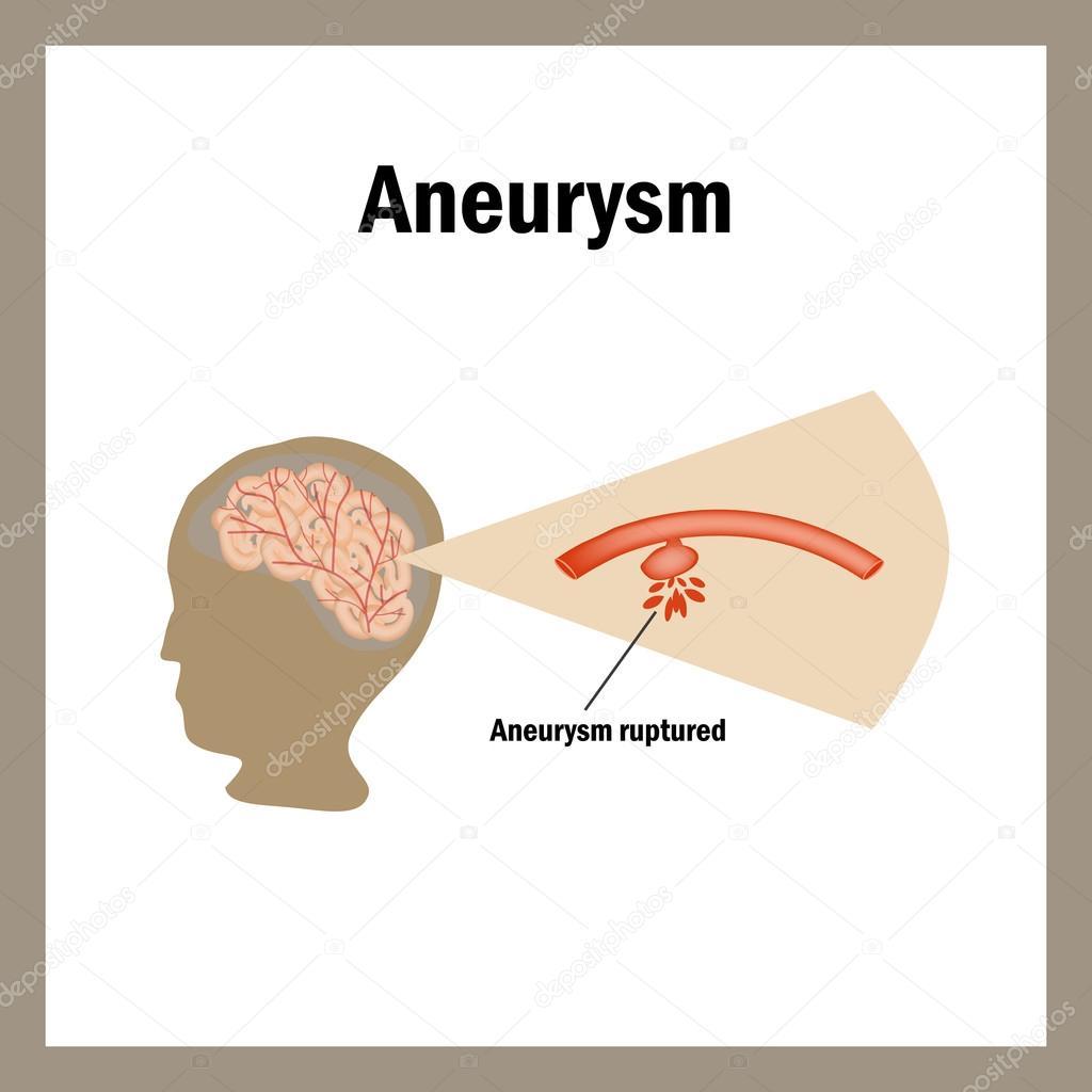 Rotura anevrizmy. Krovoizliyanie el cerebro. Accidente ...