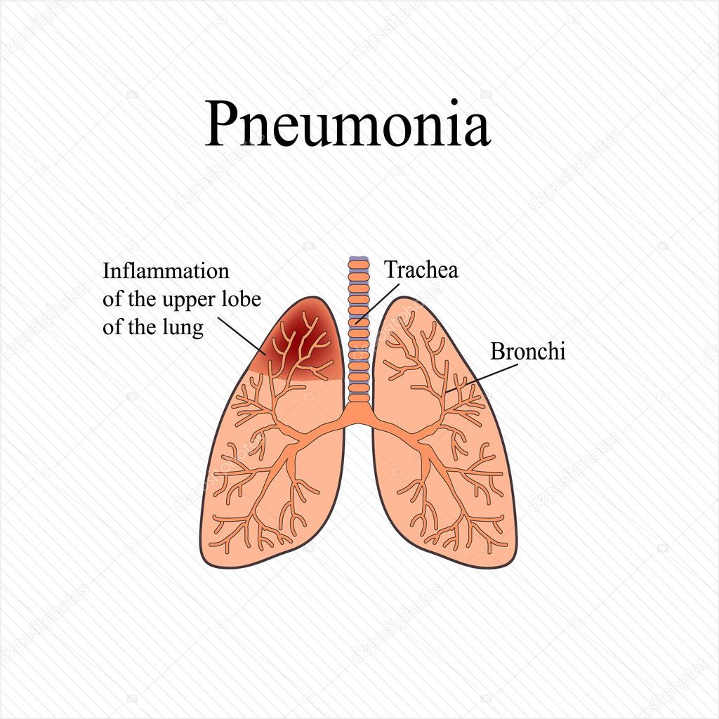 Pneumonia. The anatomical structure of the human lung. Inflammation ...