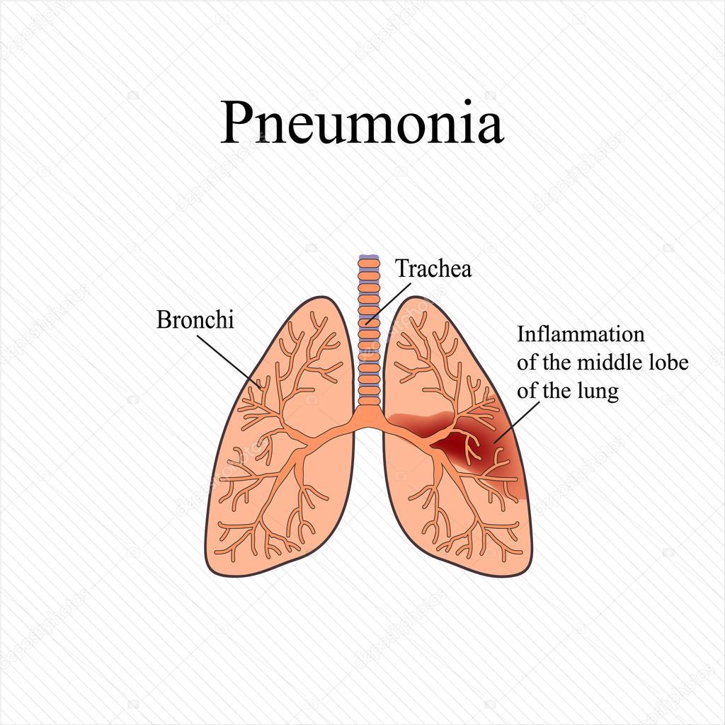 Neumonía. La estructura anatómica del pulmón humano. Inflamación del ...