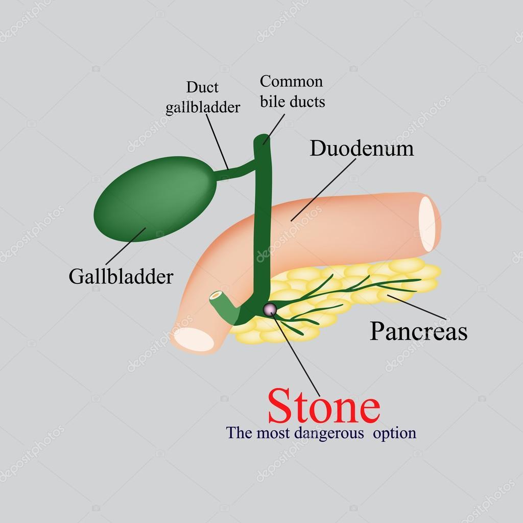 Piedra pancreático biliar. La vesícula biliar, duodeno, vías ...