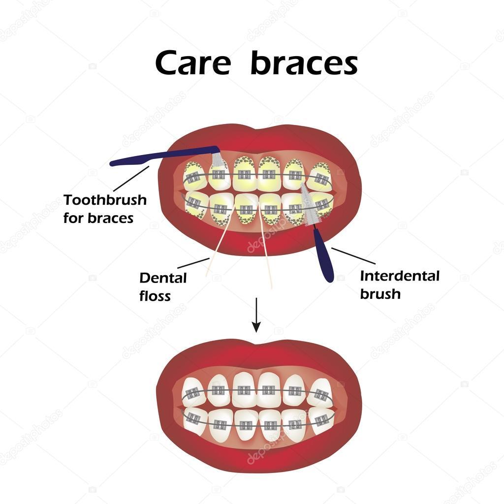 Ligo o aparelho dentes escova interdental fio dental infogrficos ligo o aparelho dentes escova interdental fio dental infogrficos ilustrao vetorial no ccuart Choice Image