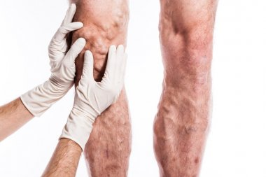 Doctor in medical gloves examines a person with varicose veins o