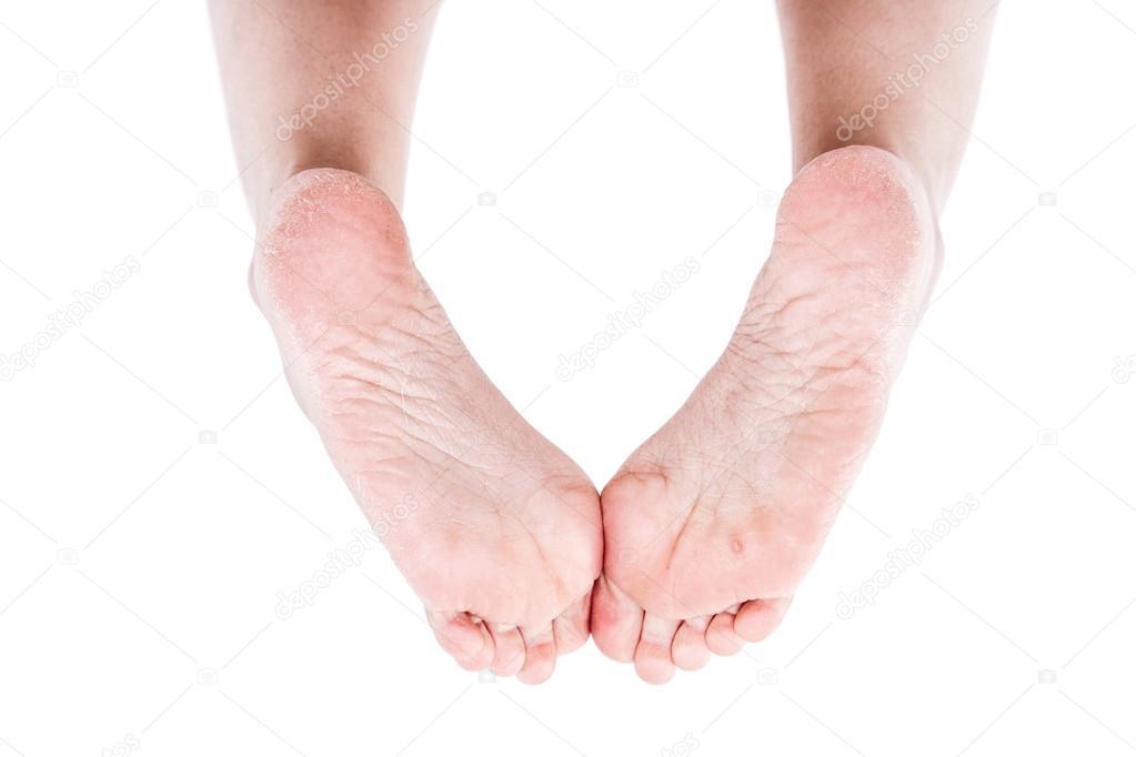 Weibliche Beine Mit Overdried Feuchtigkeitsarme Trockene Haut Auf