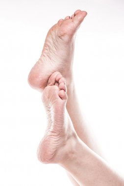 female foot with pedicure and poor over-dry skin on the heels of