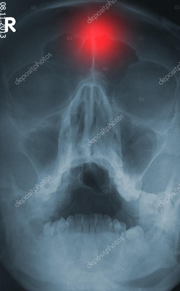 cráneo humano trauma xray — Foto de stock © igordabari #55021671