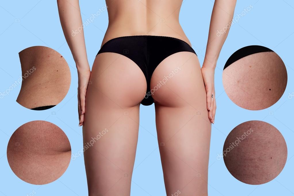 celluliter före och efter