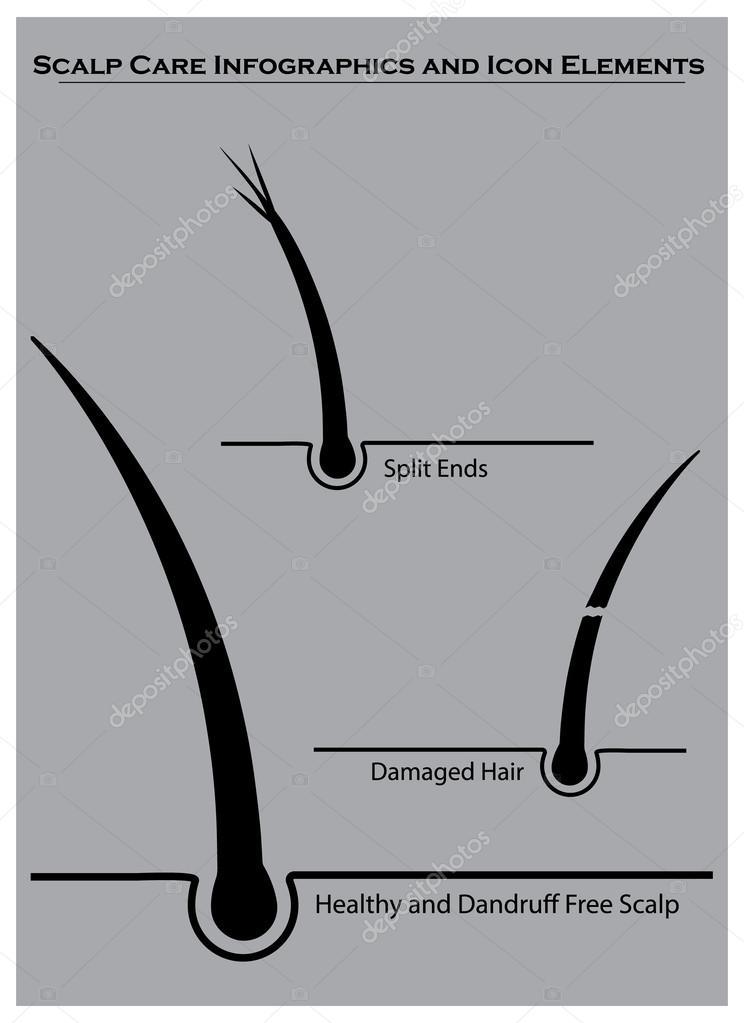 Haar und Kopfhaut Pflege-Info-Grafiken — Stockvektor © jaylopez ...