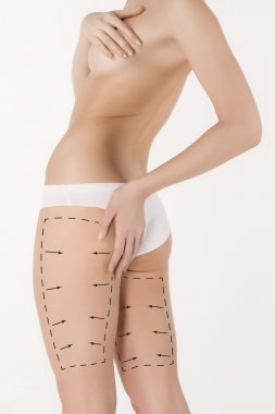 Cellulite removal plan. Black markings on young woman body