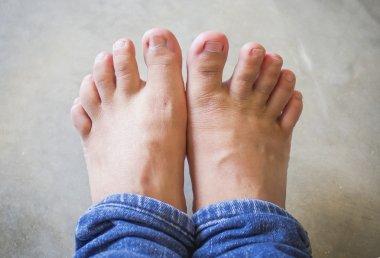 Short toes