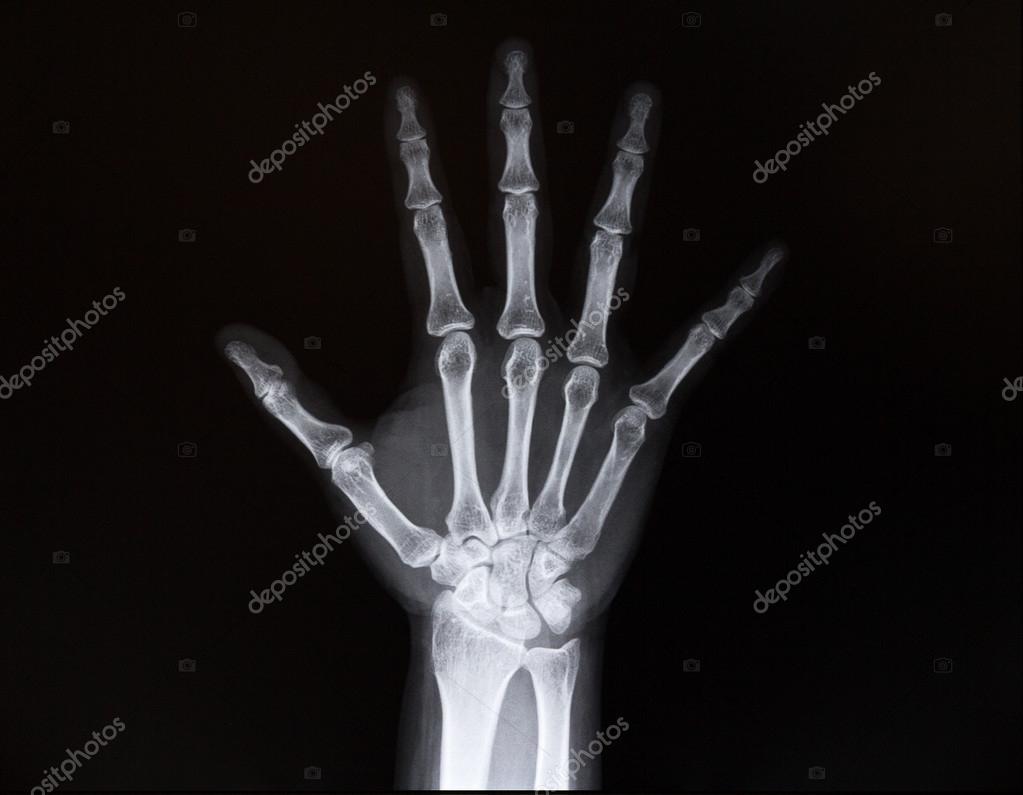Radiografía de la muñeca de los brazos. Medicina — Foto de stock ...