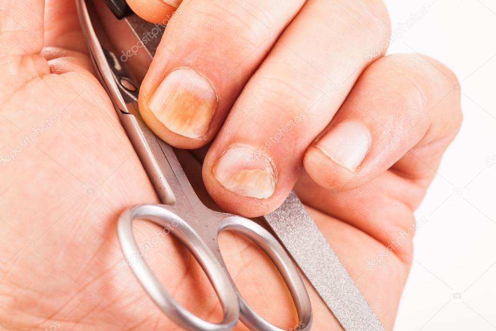 Fingernails with nail fungus — Stock Photo © zaschnaus #97099210