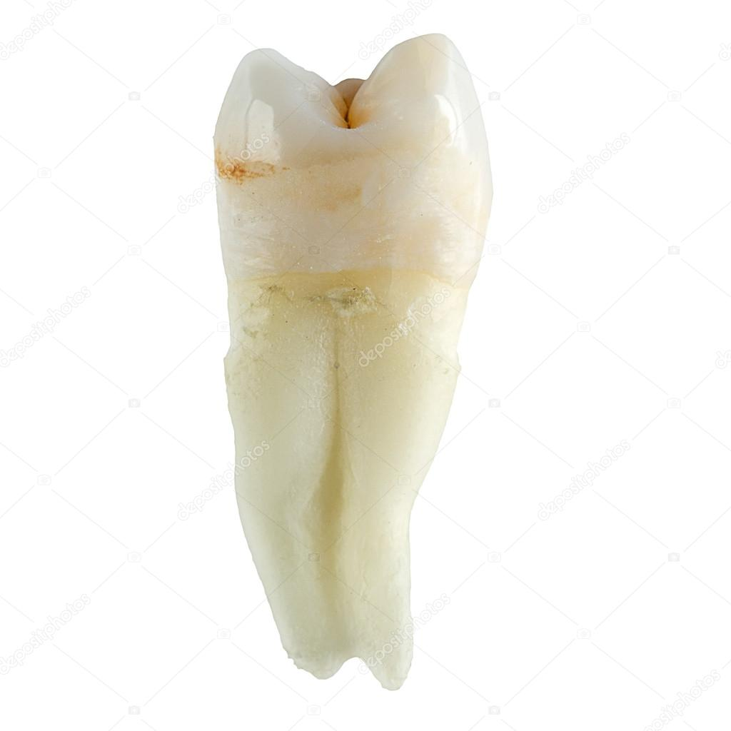 Extracted wisdom tooth on white background