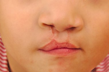 Boy showing a bilateral cleft lip repaired.