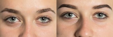 Part of face eyebrows before after