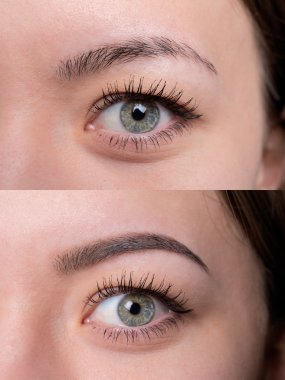 Before after brows