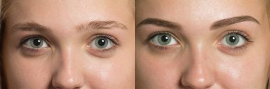 Eye brows before after correction