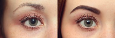 Eyebrows before after
