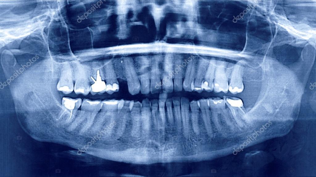 radiografía panorámica dental — Foto de stock © Fixzh #81450498