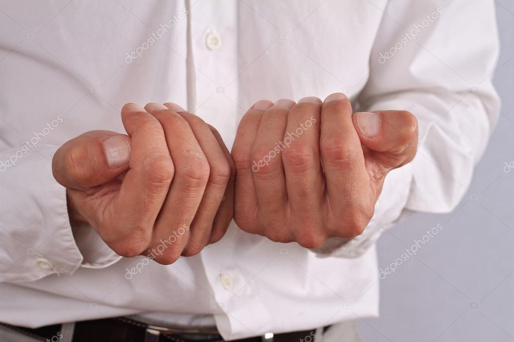 Száraz bőr férfi kezét. Bőrgyógyászat c88fcb0aac
