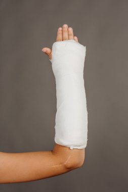 Close-up of a broken arm in a cast on  grey background.
