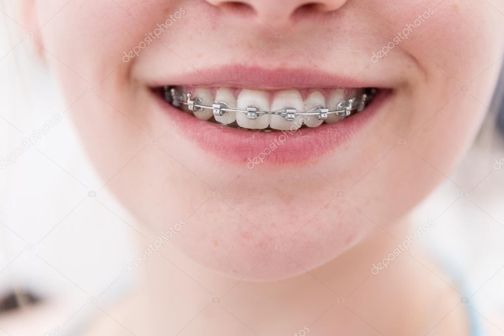 Dental Brace Stock Photo 169 Studioamagica 71806761