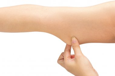 Woman testing the flabby muscle under her arm pulling it down wi