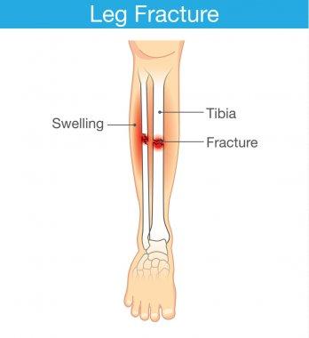Diagram of leg fracture