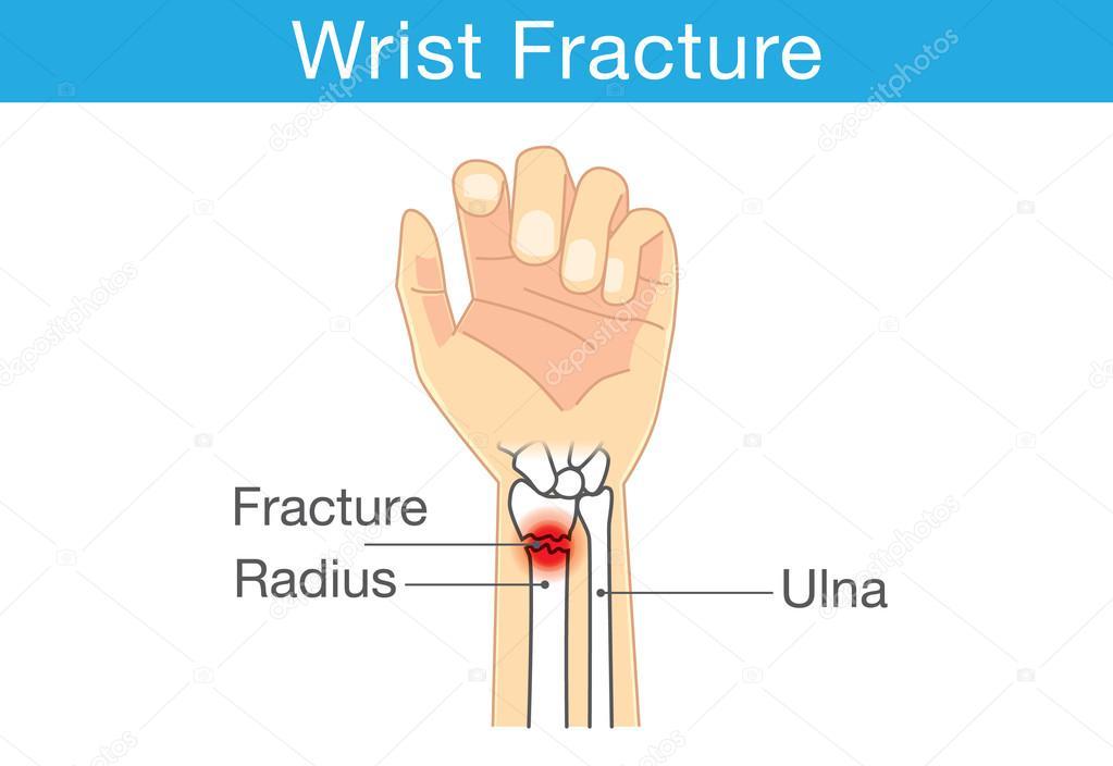 Diagrama de muñeca tienen el hueso de la fractura — Archivo Imágenes ...