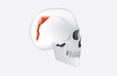 Human Skull Fracture