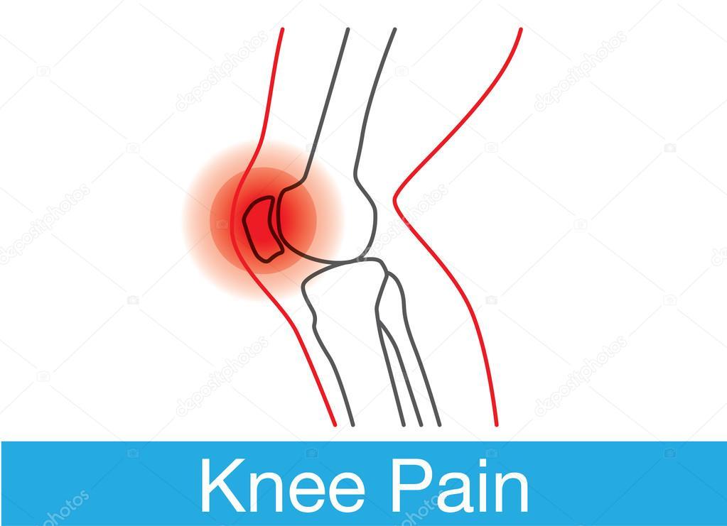 Esquema de dolor de rodilla — Vector de stock © solar22 #101582654