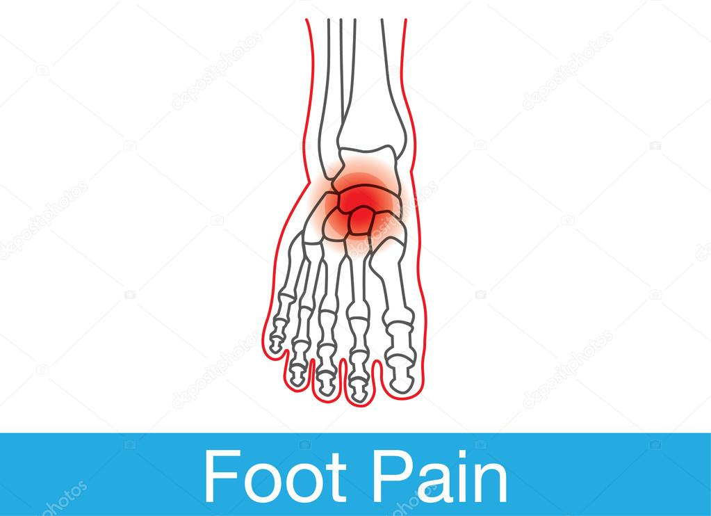 Inner of foot pain — Stock Vector © solar22 #101582718